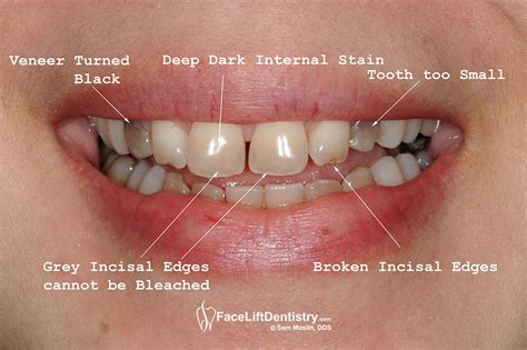 childrens teeth discoloration and veneers picture 3
