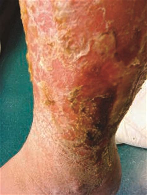 pseudomonas bacterial infection of legs picture 6