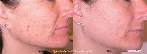 clearlight acne treatment picture 3