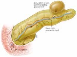 cysts on pancreas liver and stomach picture 11