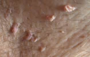 genital warts male doctor picture 3