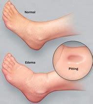 liver failure + swollen ankles picture 5