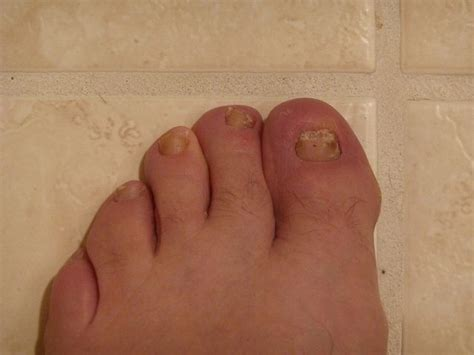 can candida cause toenail fungus picture 10