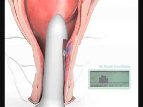 what to expect after hemorrhoid surgery picture 3