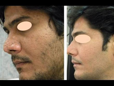 laser acne spot removal in india picture 2