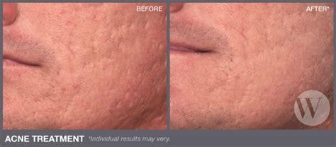 acne treatment consumer report picture 1
