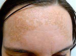 pill that lightens melasma from mercury drug store picture 4