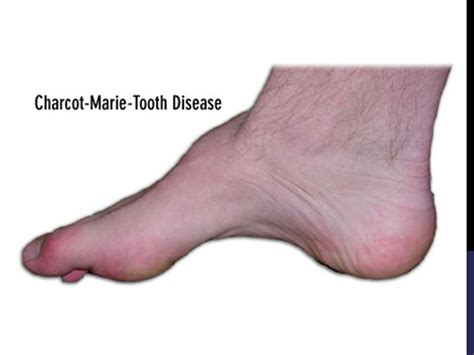 charcot marie tooth picture 7