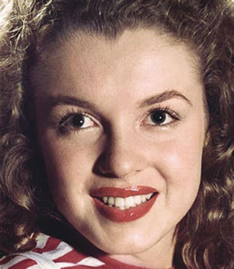 acne records picture 10