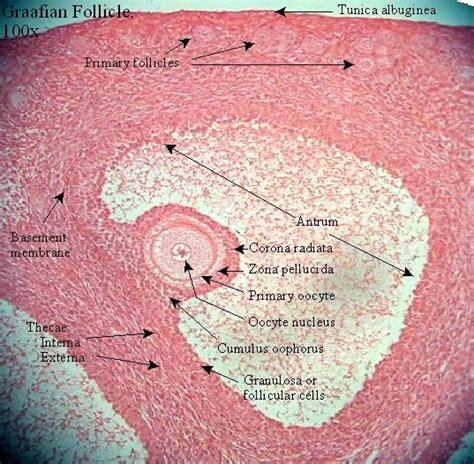 s bladder stones picture 15