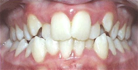 causes of teeth problems picture 11