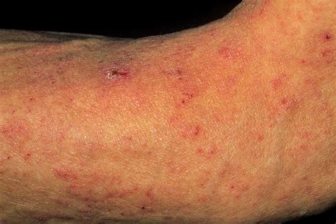 allergic reaction skin rashes picture 2