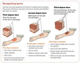 how to treat steriod burn on skin picture 6