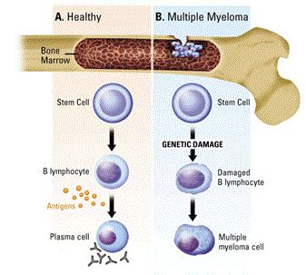 bladder myeloma picture 6