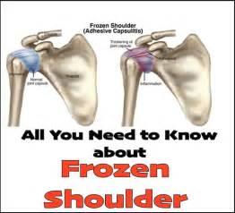 shoulder picture 10