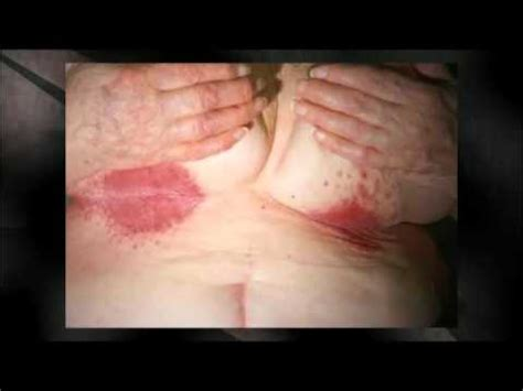 yeast infection in girls picture 3