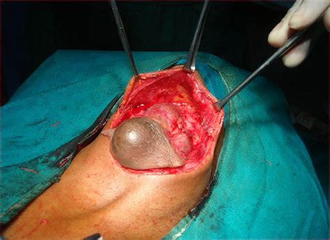 surgery to remove thyroid nodule picture 9