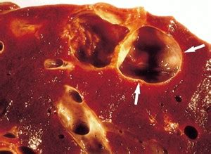 what causes liver cysts picture 17