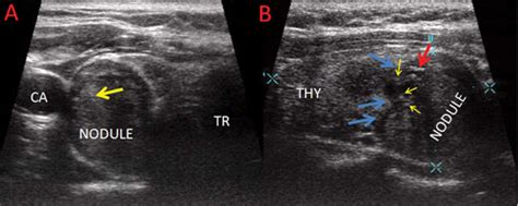 blue and red on thyroid nodule ultrasound picture 2