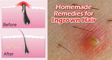 ingrown hair cys picture 7