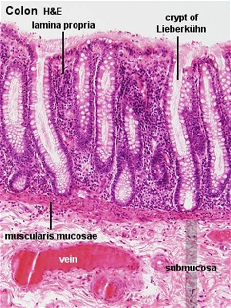thickening wall in sigmoid colon picture 10