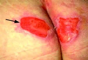 acne on toddlers buttocks picture 13