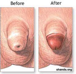 uncircumsized penis picture 3