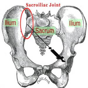 sacroiliac joint picture 1