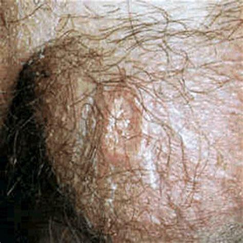 genital skin lesion picture 1