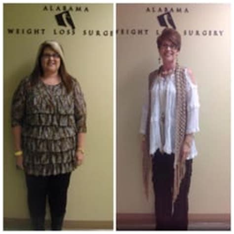 bariatric weight loss in birmingham alabama picture 2