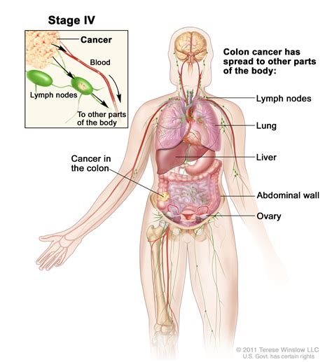 treatment for colon cancer if spread to one lymph node picture 2