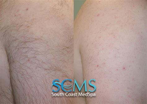 forearm hair removal picture 7