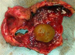 gullbladder infection picture 15