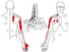 deltoid muscle injections picture 14