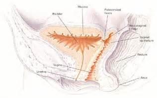 bladder fistula picture 15