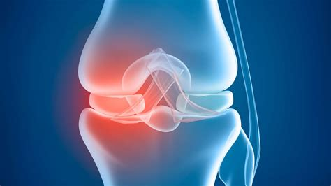 chron's disease joint pain picture 2