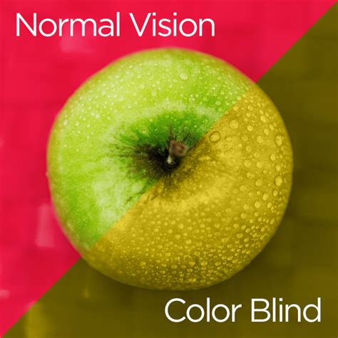 color blindness treatment inthe philippines picture 2