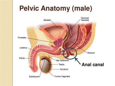 colon cancer in men picture 6