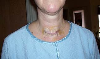 aspiration of a nodule in the thyroid gland picture 3