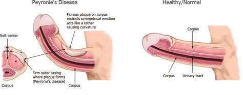 curved penis medical pictures of picture 4