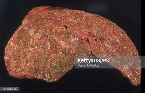 fatty infiltration of the liver picture 7