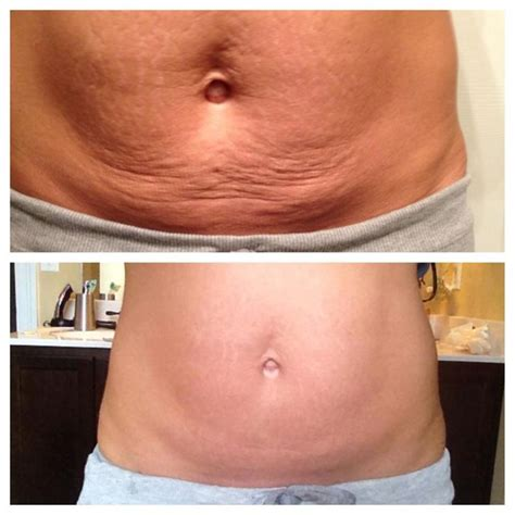 detox wrap to get rid of stretch marks picture 3