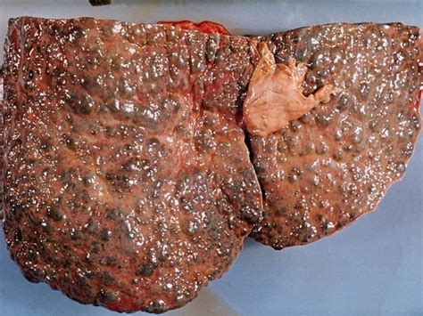 cirrhosis of the liver pictures picture 11