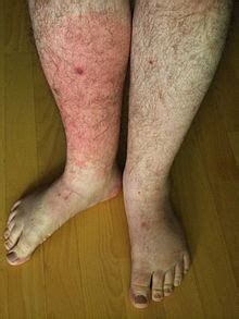 can foot fungus cause swollen nodes in legs? picture 11