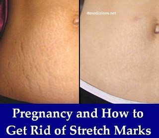 how can i get rid of my stretch marks for free picture 2