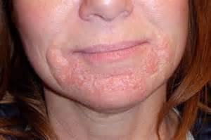 skin & face rash picture 3