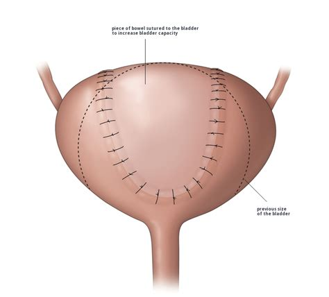 female full bladder holding it picture 6