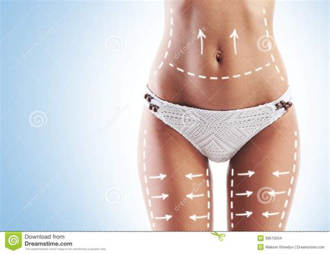 female belly cellulite picture 14
