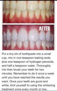 does baking soda whiten teeth picture 13