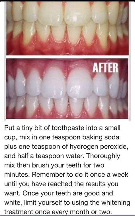 does baking soda whiten teeth picture 5